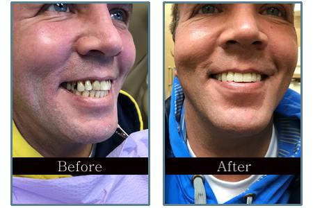 Dental Case Studies   Dental Care In Livonia, MI